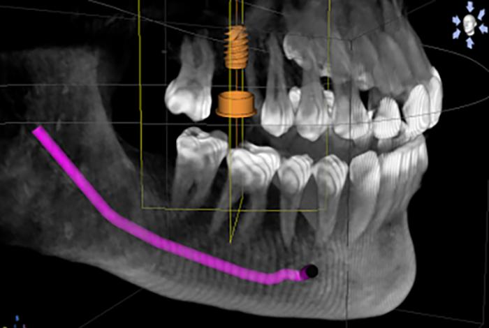 3D-Cone-Beam_Image