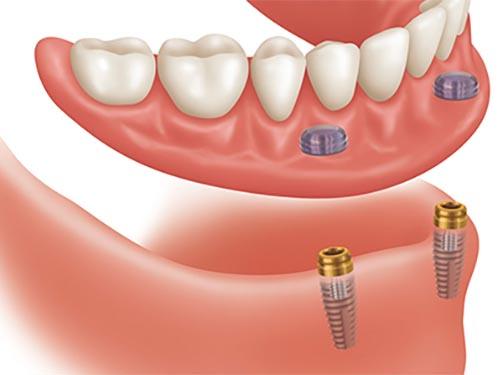 All-on-4 hybrid denture
