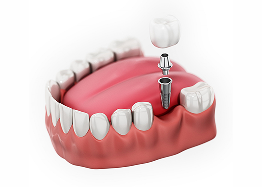 Implant placement, restoration